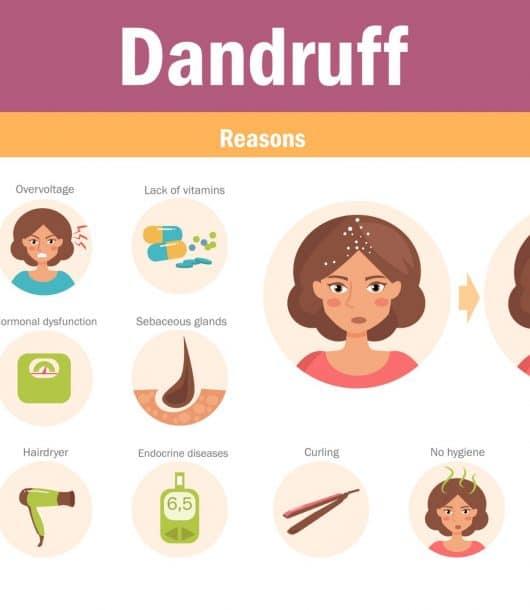 Dandruff Cure