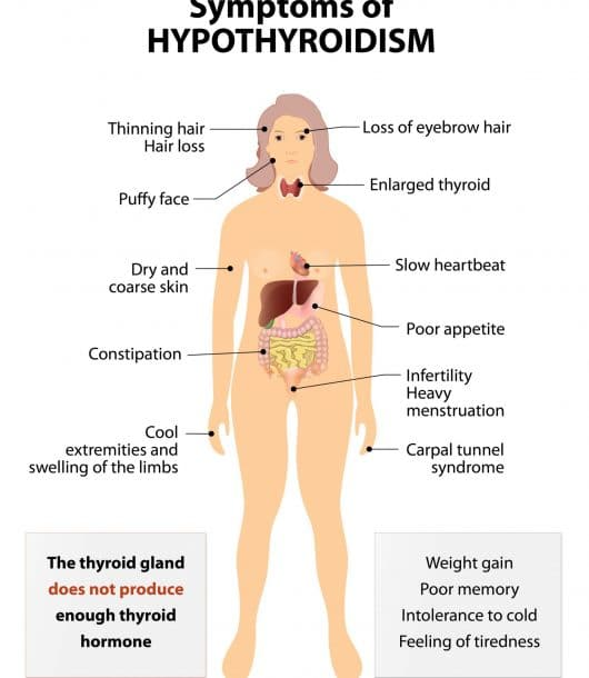 sub clinical hypothyroidism